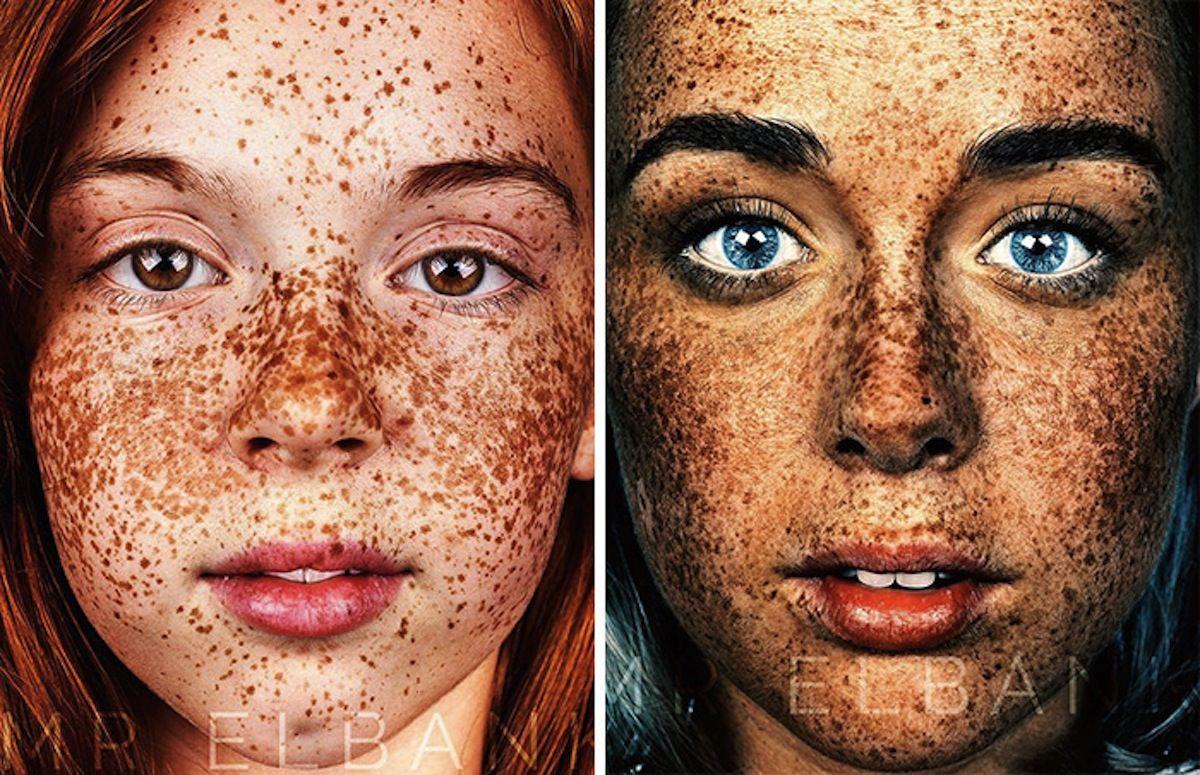 I migliori mezzi da pigmentazione di pelle